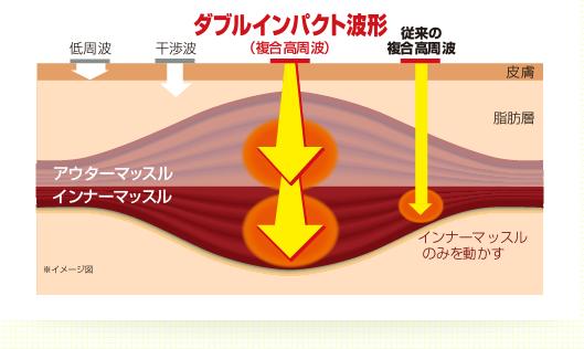 楽トレダブルインパクト波形